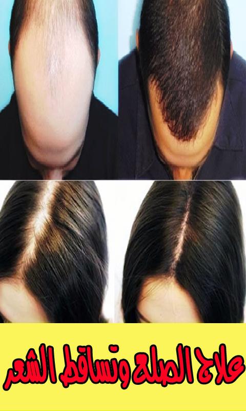 184d8ef9d الحل النهائي لتساقط الشعر- وصفات تكثيف الشعر مجربة 1.0 screenshot 1 ...