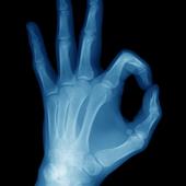 Best X-Ray FREE 5.0