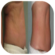 belly cellulite 1.0