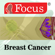 Breast Cancer 1.0.1