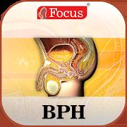 Benign Prostatic Hyperplasia 1.0