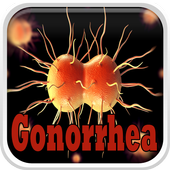 Gonorrhea Infection 0.0.1