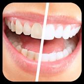 تبييض الأسنان بطرق طبيعية 2.1