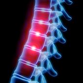 OrthoRef Lite 1