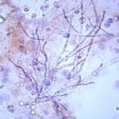 Urinemicro 1.11