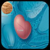 Prostate Cancer Symptoms 1.0