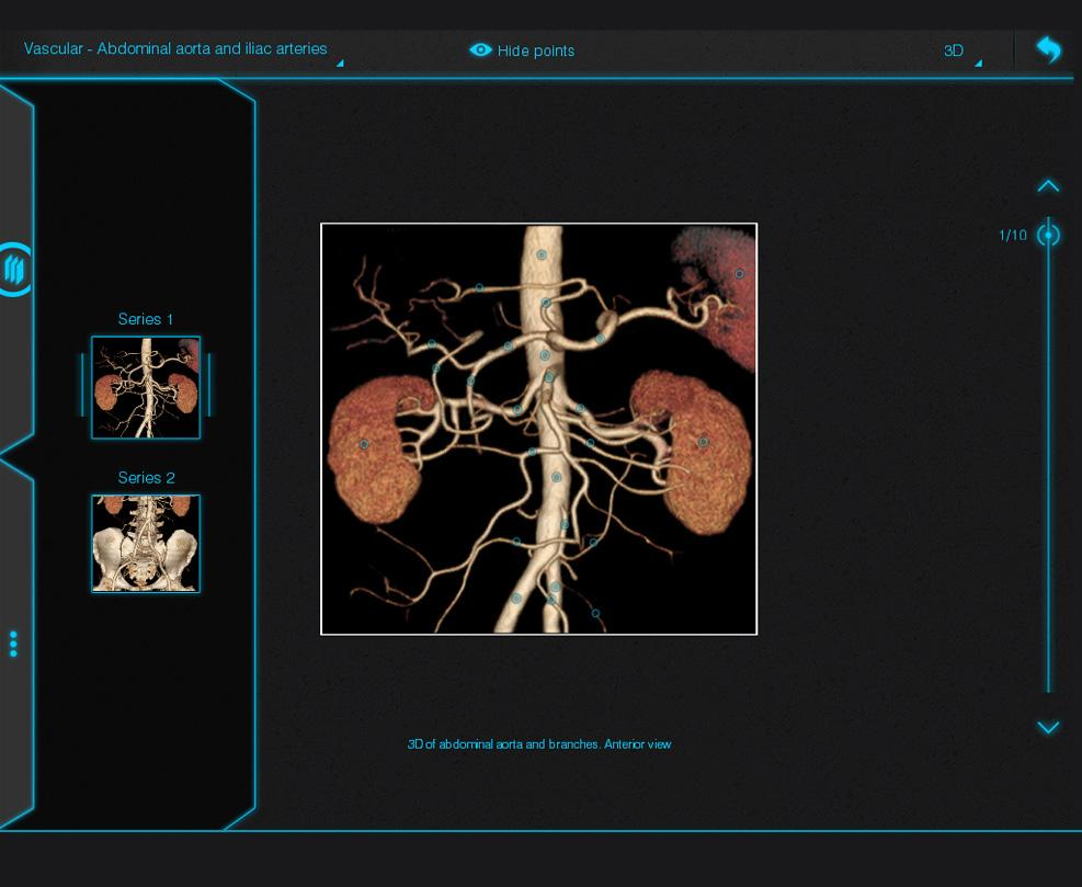 Atlas de Anatomia Radiológica 1.0.7 APK Download - Android Medical Apps