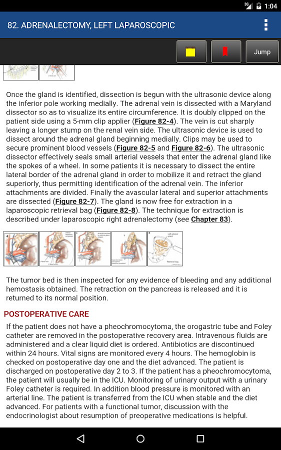 Zollingers atlas of surgery 12 apk download android medical apps zollingers atlas of surgery 12 screenshot 22 fandeluxe Image collections