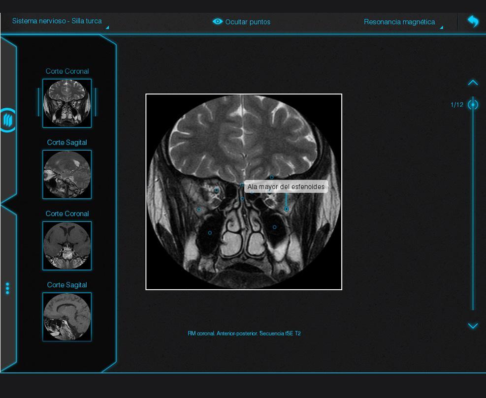 Excelente Atlas De Anatomía Radiología Imágenes - Anatomía y ...